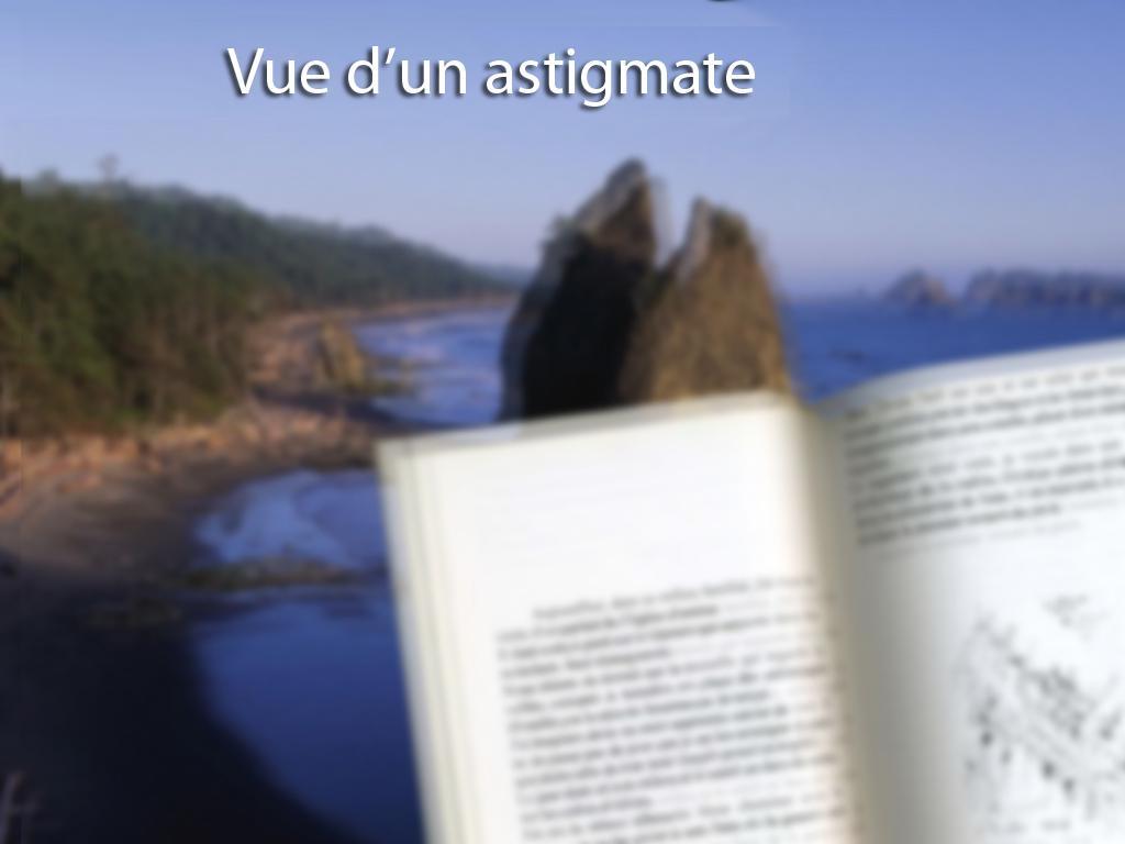 Op 233 Ration De L Astigmatisme Par Laser Lasik Lyon